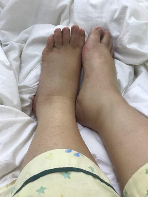 ネフローゼで浮腫んだ足