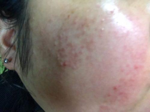 ニキビ肌にアルージェのトラブルリペアリキッドの化粧水をつけた写真